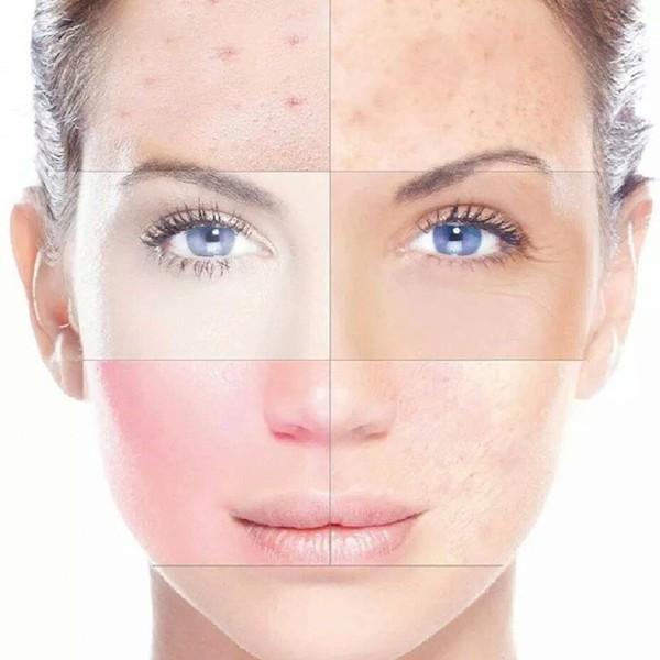 Micro abrasion dermica rejuvenecimiento facial