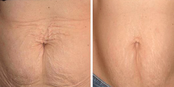 Pulsed Dye Laser Treatment Cost For Stretch Marks 9mm