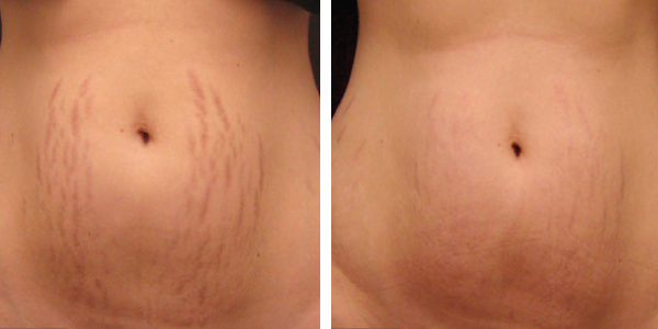 Microneedle-stretch-marks