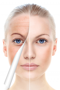 Improve Your Skins Appearance Using MicroNeedling with PRP
