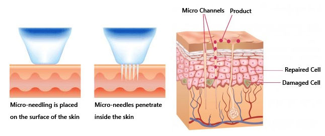 micro-needling-figure