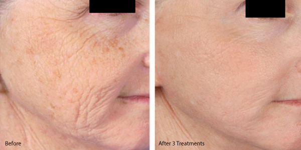 Treat Lines and Wrinkles with Micro Needling