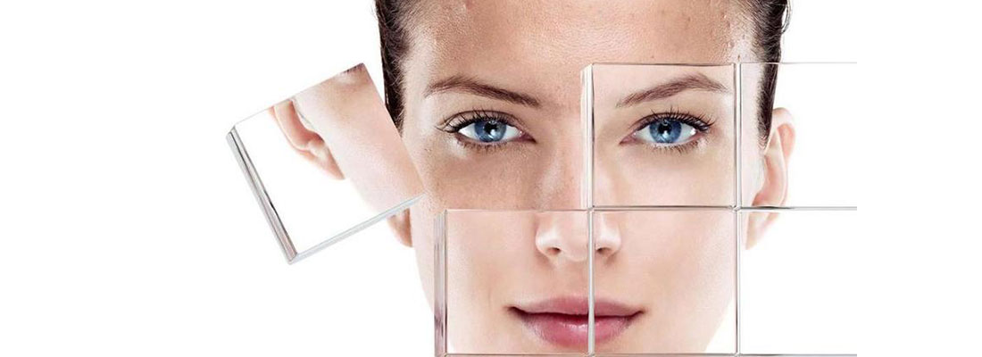 Can Microneedling Help Tackle Acne Scars?