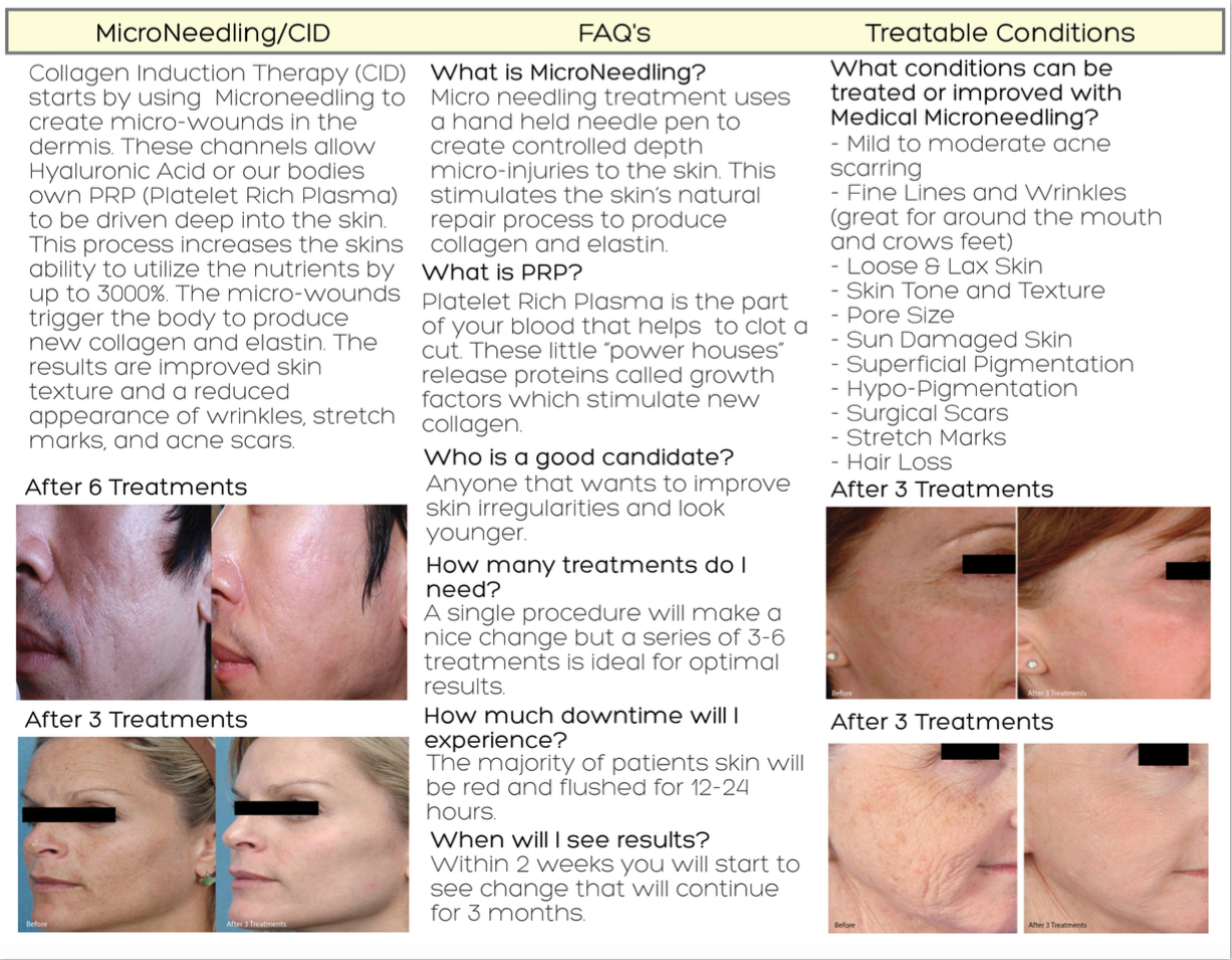 Microneedling: Things You Need To Know Before You Try It advise