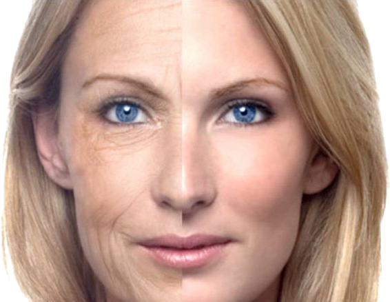 How Long Will Microneedling Effects Last