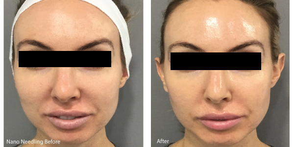 Microneedling Before and After Gallery - MD Needle Pen